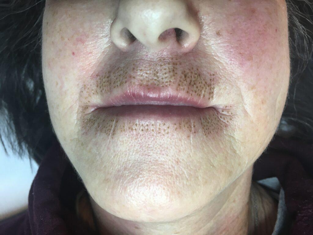 fibroblast skin tightening treatment