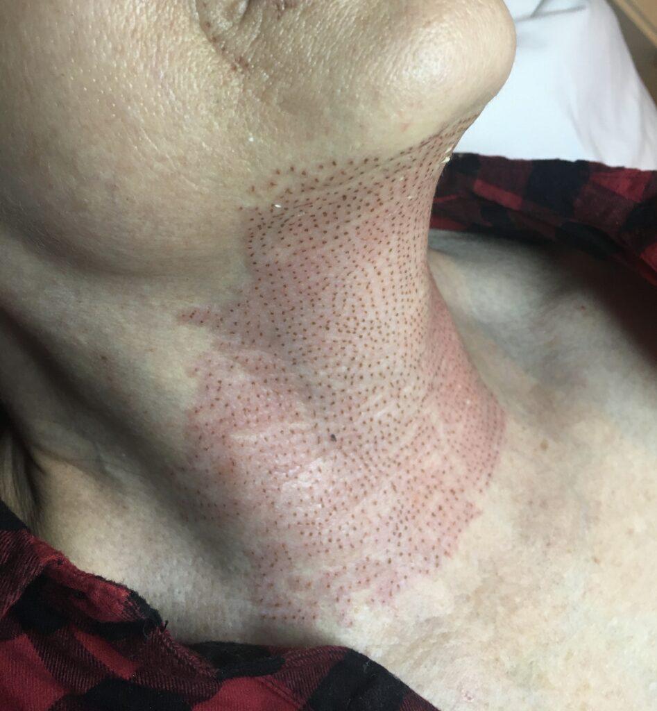 fibroblast skin treatment